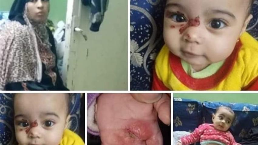 القباج: توجه فريق التدخل السريع  بتقديم الدعم للطفلة ساجدة التى تعرضت للعنف وعمرها تسعه أشهر.