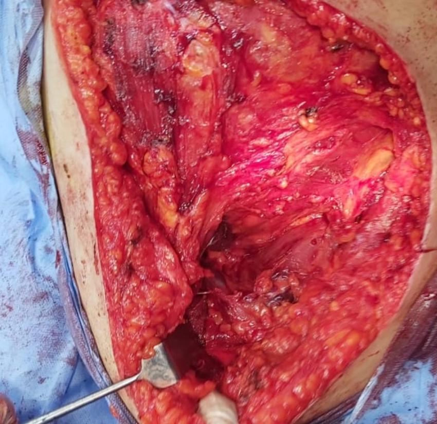 إجراء جراحات الاورام مستمر اسبوعياً بمستشفى السويس العام