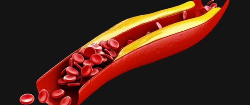 أسباب وعوامل خطر ارتفاع الكولسترول